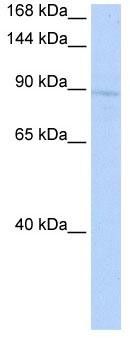 Western blot - KIF20A antibody (ab85644)