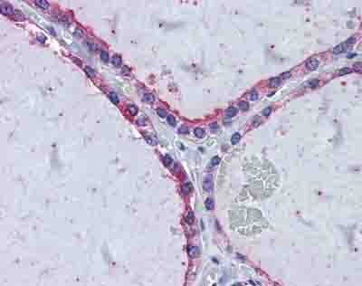 Immunohistochemistry (Formalin/PFA-fixed paraffin-embedded sections) - Anti-KIF20A antibody (ab85644)