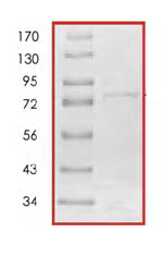 SDS-PAGE - Fyn protein (Tagged) (ab85650)