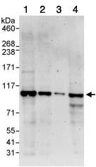 Western blot - NOC3L antibody (ab85653)
