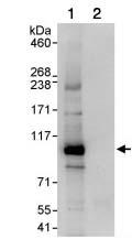 Immunoprecipitation - NOC3L antibody (ab85653)