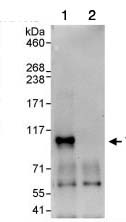 Immunoprecipitation - Anti-TAB3 antibody (ab85655)