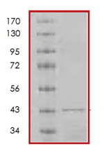 SDS-PAGE - p19 INK4d protein (Tagged) (ab85658)