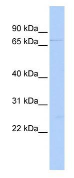 Western blot - DDX59 antibody (ab85663)