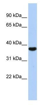 Western blot - RRP4 antibody (ab85665)