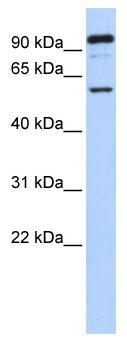 Western blot - GABRR1 antibody (ab85667)