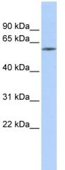 Western blot - ZNF205 antibody (ab85668)