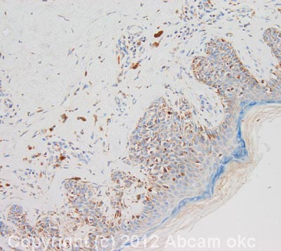 Immunohistochemistry (Formalin/PFA-fixed paraffin-embedded sections) - Anti-Sprouty 2 antibody (ab85670)