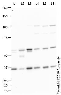 Western blot - Sprouty 2 antibody (ab85670)