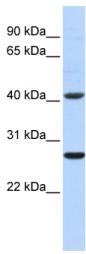 Western blot - GSTM5 antibody (ab85674)