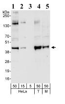 Western blot - Bmi1 antibody (ab85688)