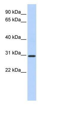 Western blot - BCAS2 antibody (ab85708)