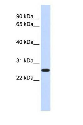 Western blot - DULLARD antibody (ab85709)
