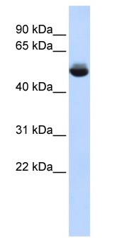 Western blot - TAM1L1 antibody (ab85710)