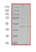 SDS-PAGE - Nck protein (His tag) (ab85711)