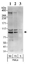 Western blot - EEF2K antibody (ab85721)