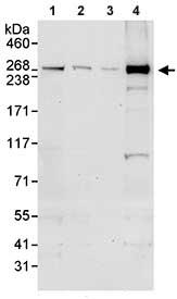 Western blot - CEP290 antibody (ab85728)
