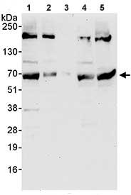 Western blot - WDR20 antibody (ab85729)