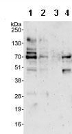 Western blot - LRWD1 antibody (ab85738)