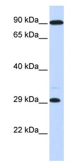 Western blot - HOXB8 antibody (ab85745)