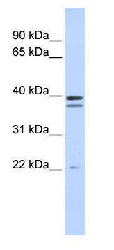 Western blot - RABGGTB antibody (ab85748)