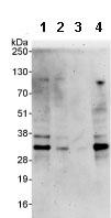 Western blot - OBFC2B antibody (ab85752)