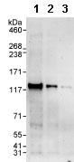 Western blot - POP1 antibody (ab85757)