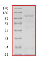 SDS-PAGE - DCAMKL2 protein (Active) (ab85758)