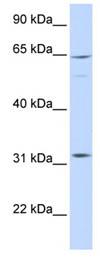Western blot - ARHGAP25 antibody (ab85766)