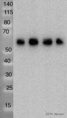 Western blot - CACNB4 antibody [S10-7] (ab85788)
