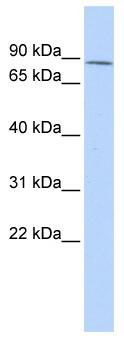Western blot - ZNF667 antibody (ab85804)