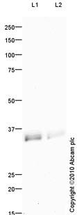 Western blot - CD20 antibody (ab85809)