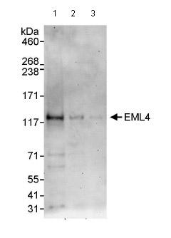 Western blot - EML4 antibody (ab85834)