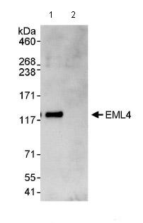 Immunoprecipitation - EML4 antibody (ab85834)