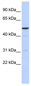 Western blot - BTBD3 antibody (ab85841)