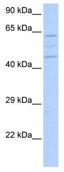 Western blot - VPS37A antibody (ab85843)