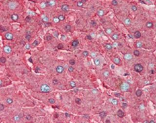Immunohistochemistry (Formalin/PFA-fixed paraffin-embedded sections) - Haptoglobin antibody (ab85846)