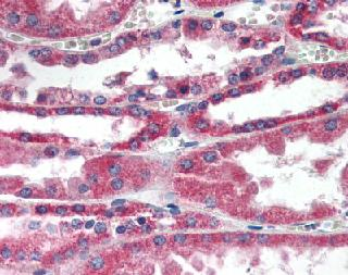 Immunohistochemistry (Formalin/PFA-fixed paraffin-embedded sections) - RDH11 antibody (ab85849)