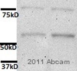 Western blot - Anti-Adipose Triglyceride Lipase antibody (ab85858)