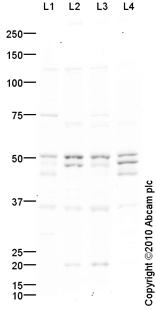 Western blot - TRF1 antibody (ab85871)
