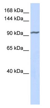 Western blot - ZNF280D antibody (ab85881)