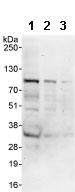 Western blot - CKAP2 antibody (ab85889)