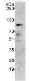 Immunoprecipitation - CKAP2 antibody (ab85889)