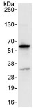 Immunoprecipitation - NUP50 antibody (ab85915)