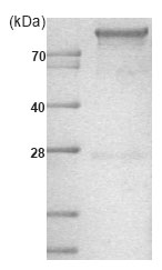 SDS-PAGE - Hexokinase 1 protein (His tag) (ab85918)