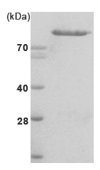 SDS-PAGE - Hexokinase II protein (His tag) (ab85920)