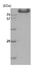 SDS-PAGE - Hexokinase Type III  protein (His tag) (ab85921)