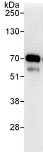 Immunoprecipitation - CCDC6 antibody (ab85923)