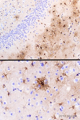 Immunohistochemistry (Formalin/PFA-fixed paraffin-embedded sections) - 5HT1B Receptor antibody (ab85937)