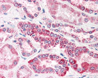 Immunohistochemistry (Formalin/PFA-fixed paraffin-embedded sections) - CED6 antibody (ab85944)